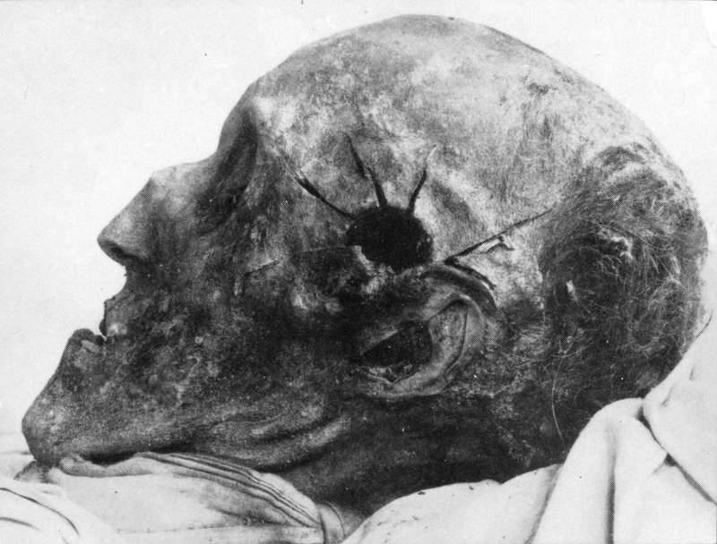 Karl XII's skull (from opening of the grave in 1917)